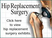 Hip Replacement Collection